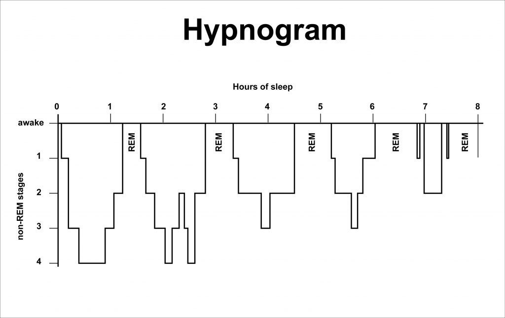 Hypnogram - the sleep cycles over eight hours of sleep